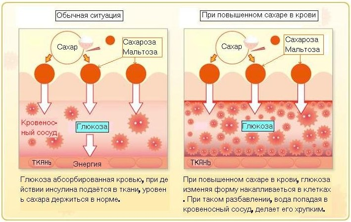 Нормальный уровень сахара в крови у мужчин