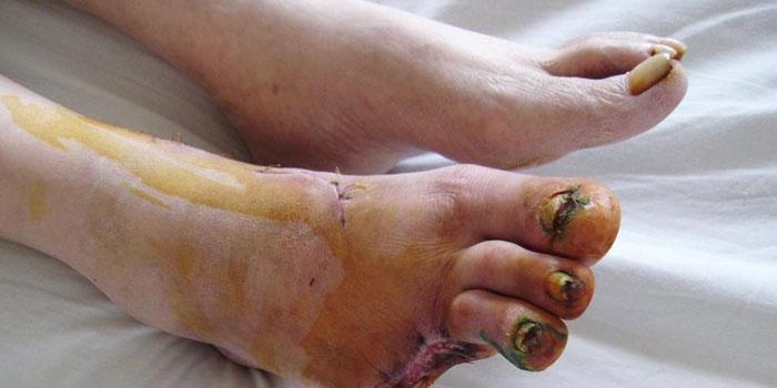 Сухой некроз ноги ног