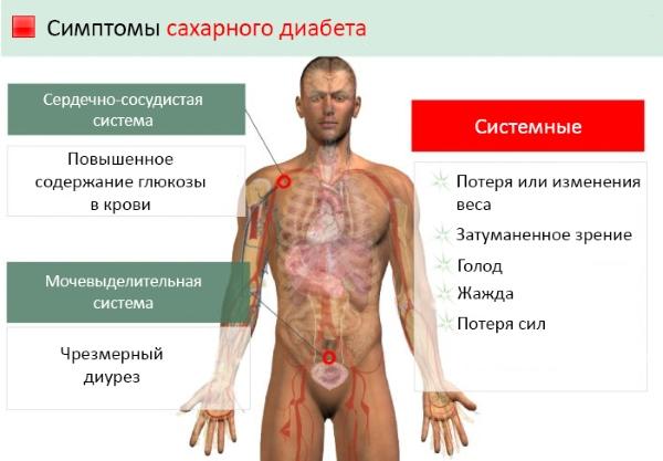Основные симптомы сахарного диабета