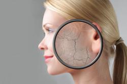 Зуд и шелушение кожи - один из признаков скрытого диабета