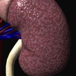 нефропатия при диабете