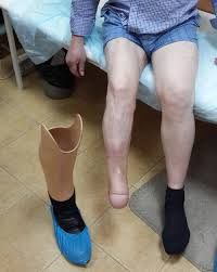 Ампутация при сахарном диабете ноги палец стопа последствия поражения конечностей