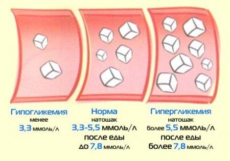 Показатели уровня глюкозы в крови в норме и при патологии