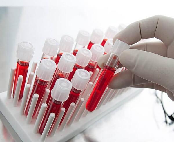 Повышен или понижен гликированный гемоглобин