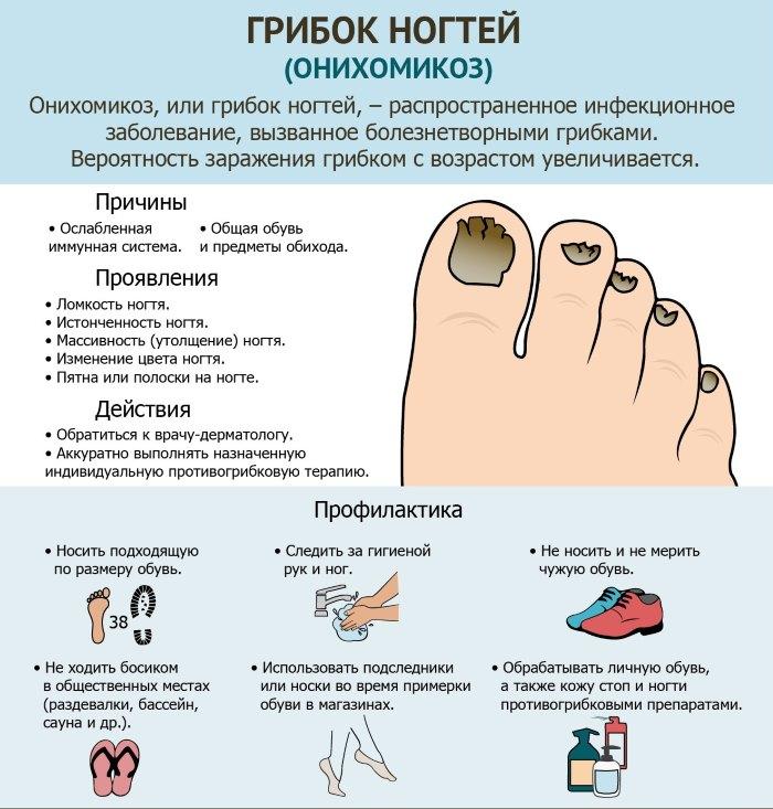 Причины, почему чернеют ногти на ногах у женщин. Как лечить ногти