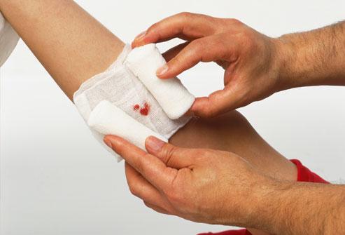 как обработать рану
