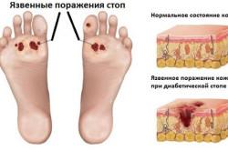 Язвенные поражения стоп при полинейропатии