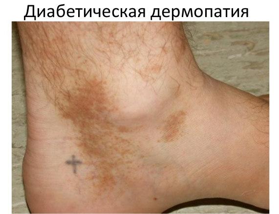 дермопатия