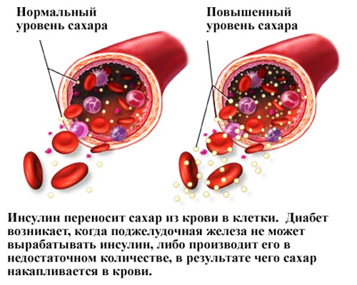 kak-vibrat-glukometr 4
