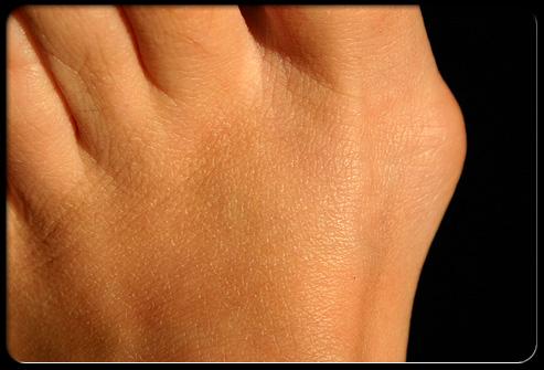 Фото: Вальгусная деформация первого пальца стопы