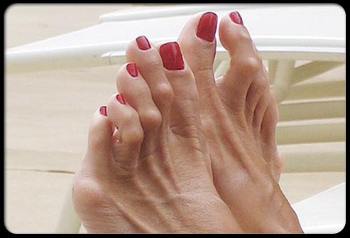 Фото: Молоткообразная деформация пальцев стопы