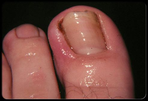 Фото: Вросший ноготь на ноге