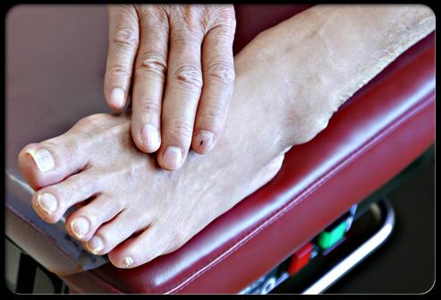 Сахарный диабет и проблемы ног Профилактический совет №2
