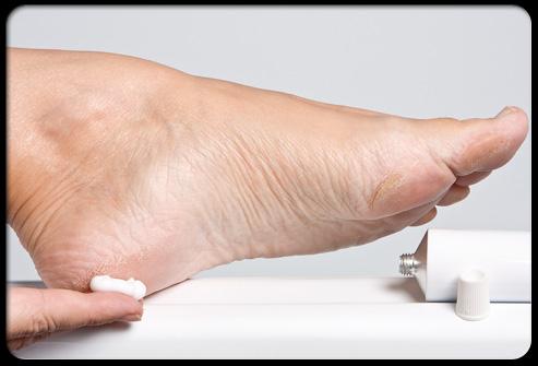 Сахарный диабет и проблемы ног. Профилактический совет №3