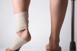 Частые травмы ног