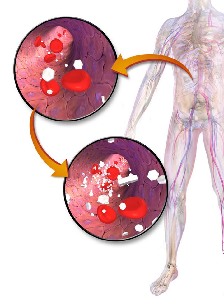 Повышенный сахар в крови лечение народными средствами