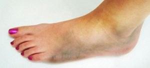 Как начинается гангрена ноги