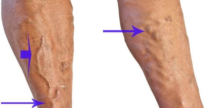 Как проявляется гангрена ноги