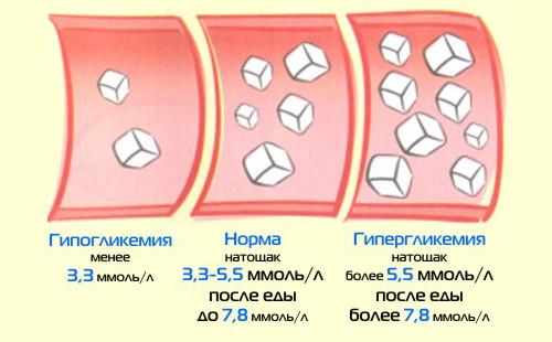 Схема показывает уровни содержания сахара в крови