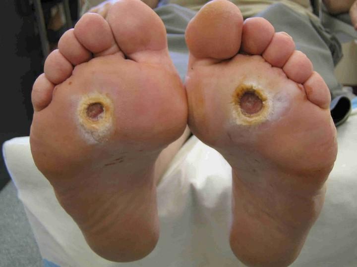 диабетические-стопы