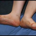 боли в ногах при диабете