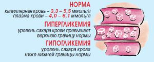 Гипер- и гипогликемия