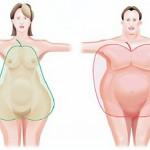 ожирения по абдоминальному типу.