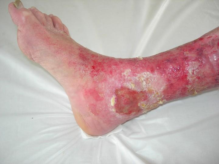 нога-пораженная-трофической-язвой