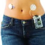 инсулиновая помпа