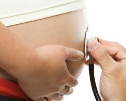 Гестационный срок беременности - Сахарный Диабет