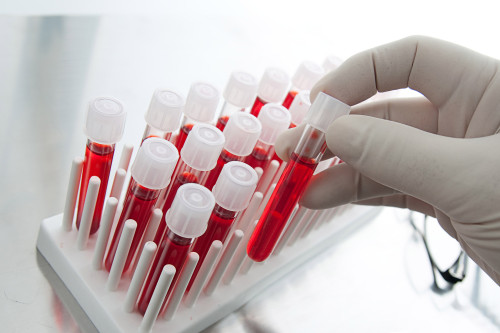 Blood samples in test-tubes