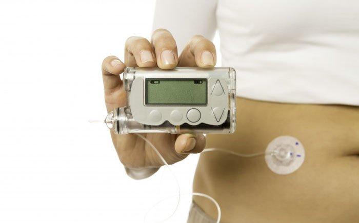 Применение инсулиновой помпы